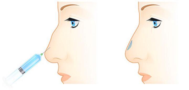 Гелевое наращивание носа