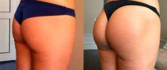 До и после коррекции ягодиц
