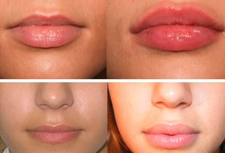 Накачанные губы