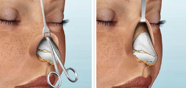 Операция по изменению формы носа