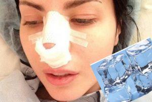 Нос после операции