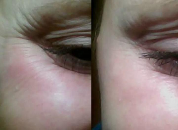 Морщинки у глаз