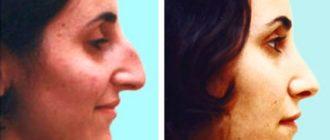 Нос до и после удаления горбика