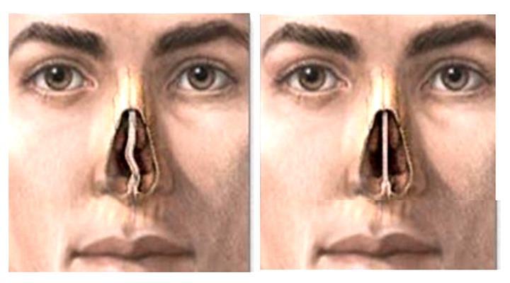 Нос с кривой и прямой перегородками в разрезе
