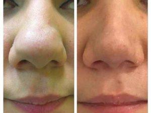 Фото носа в форме картошки