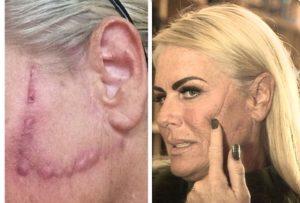 Шрамы от нитей на лице
