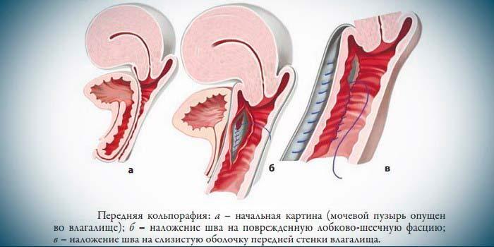 Операция по передней кольпирафии