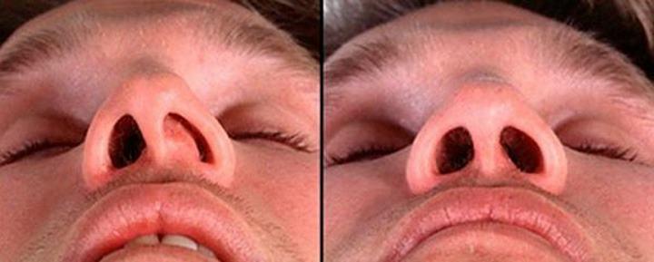 Кривая перегородка носа. Вид снизу