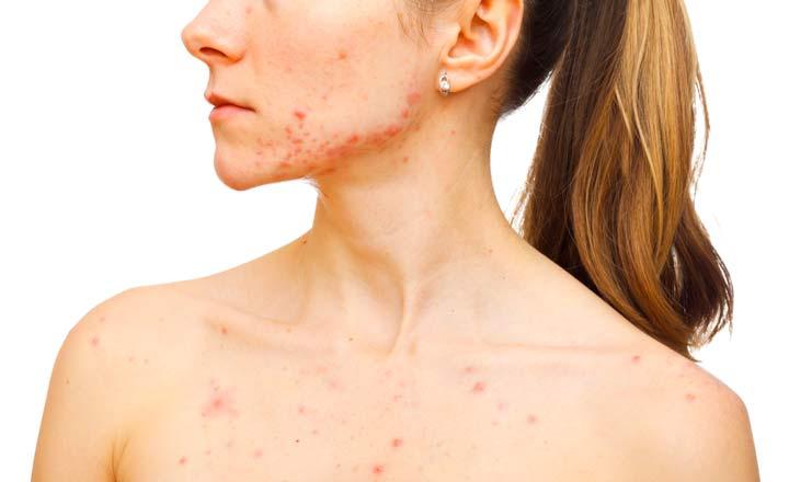 При помощи дарсонвализации лечатся проблемы с кожей