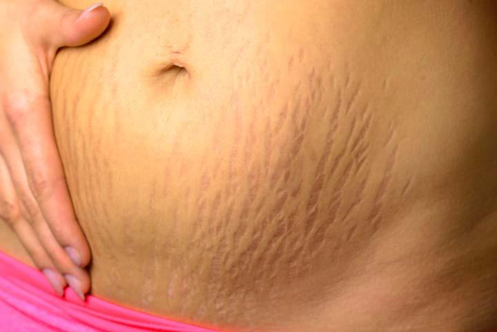 Растяжки после родов на животе являются показанием к проведению абдоминопластики