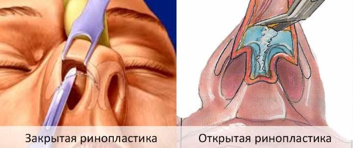 Ринопластика закрытая и открытая