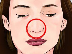 Искривление формы носа