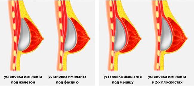 Методы установки импланта в грудь