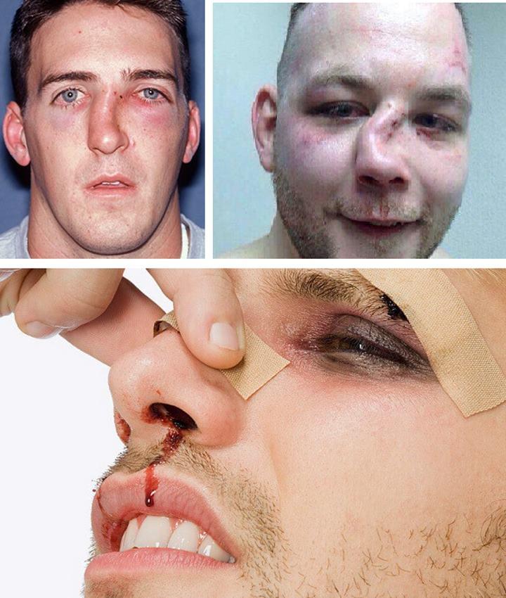 Последствия травм носа
