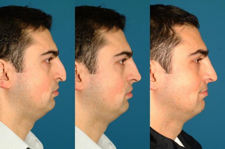 Нос мужчины до и после операции