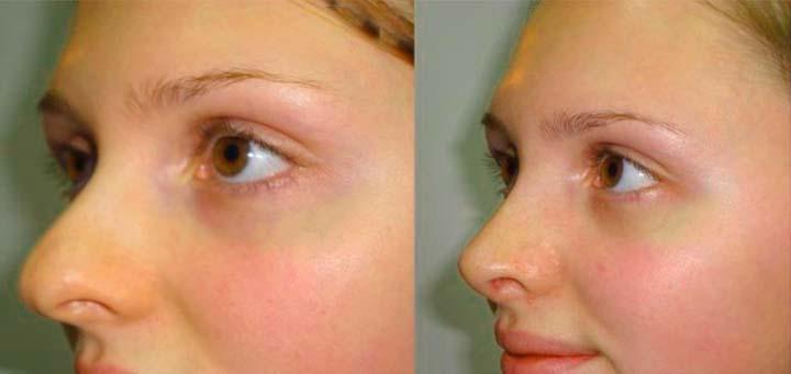 Изменение формы и уменьшение носа