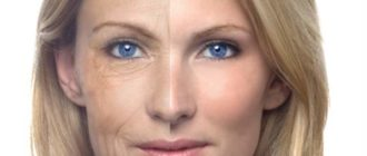 Дарсонваль лечит увядающую кожу