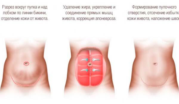 Процесс абдоминопластики