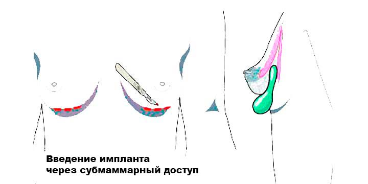 Операция по увеличению груди является разрез через разрез под молочной железой