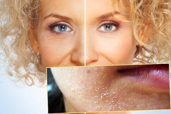 Омоложение кожа и шелушение кожи