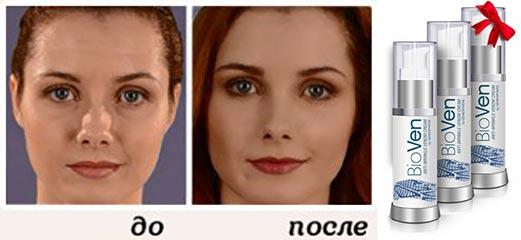 Крем биовен и лицо до и после
