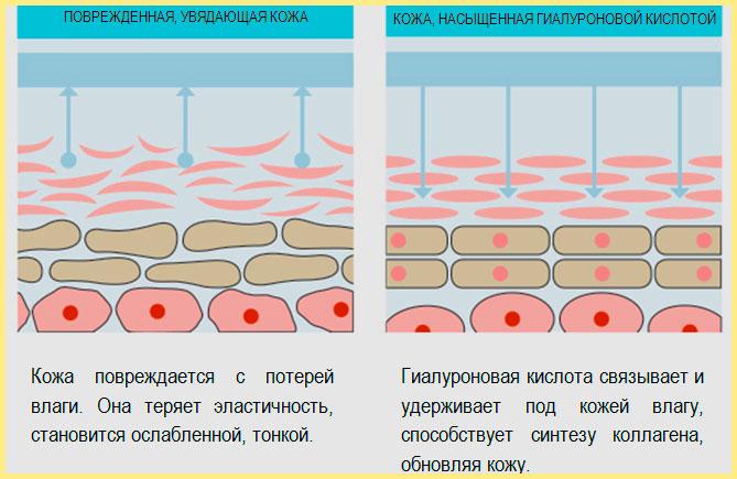 Схема воздействия гиалуроновой кислоты на кожу губ