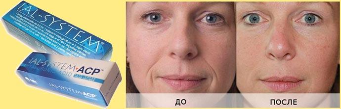 Препараты ial-system до и после омоложение лица