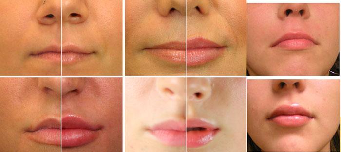 Эффекты корекции губ до и после уколов гиаулороновой кислоты