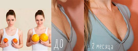 Увеличение объема груди массажем