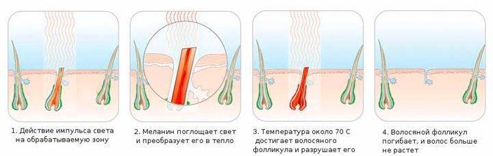 Процедура Flash – скоростной электроэпиляции