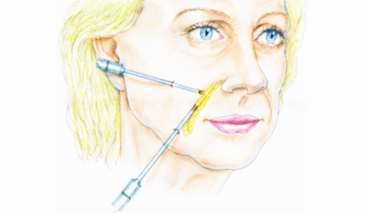 Процедура липофилинга