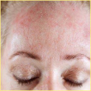 Аллергическая реакция на лице от крема