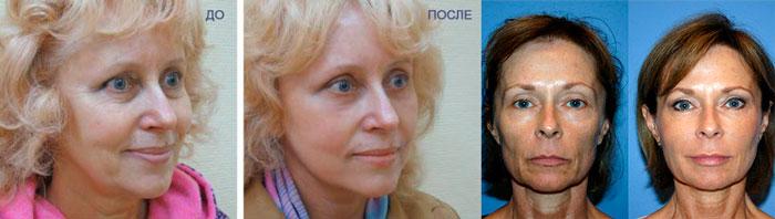 Омоложение лица плазмолифтингом: до и после