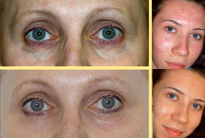 Кореркция проблем кожи плазмолифтиногом, до и после