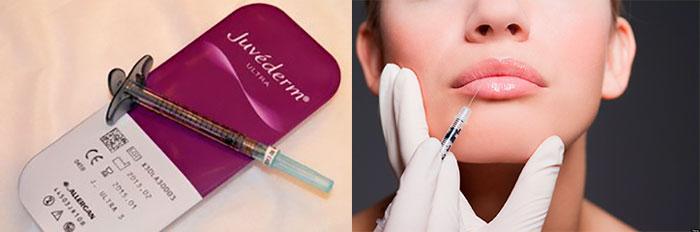 Juvederm введение препарата под кожу