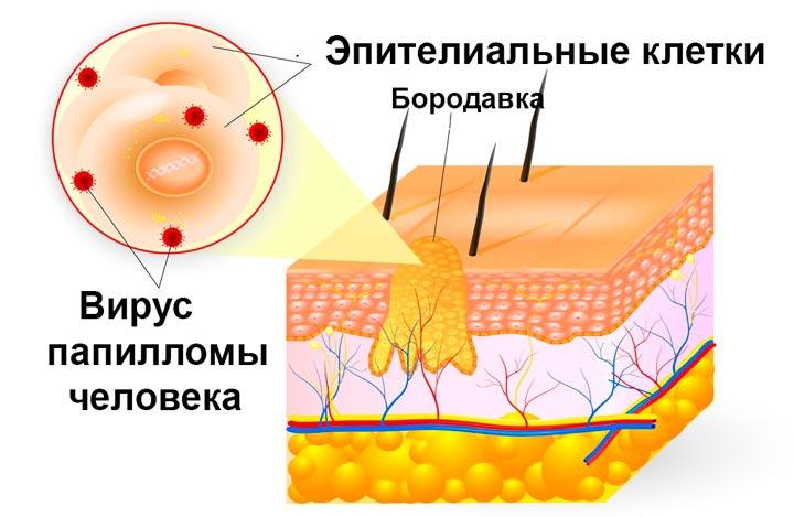 Схема папиллом и бородавок