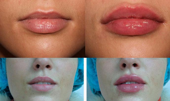 Отеки губ после уколов гиалуроновой кислотой