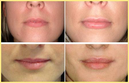 Вид до и после корекции губ гиалуроновой кислотой