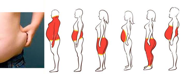 Разновидности ожирения