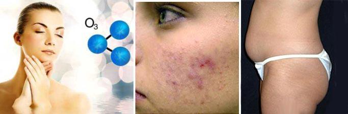 Озонотерапия от целлюлита и проблем кожи