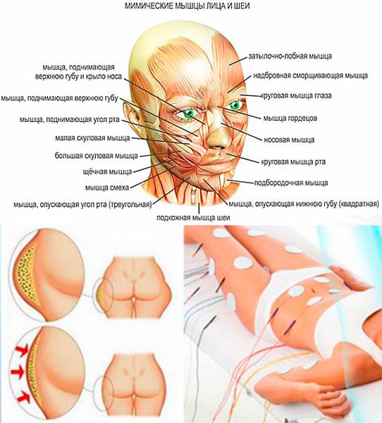 Схема мышщ на лице и миостимуляция от целлюлита