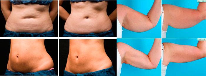 Тело до и после криолиполиза