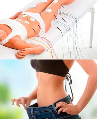 Миостимуляция и похудение живота