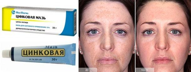 Результаты цинковой мази от морщин на лице до и после