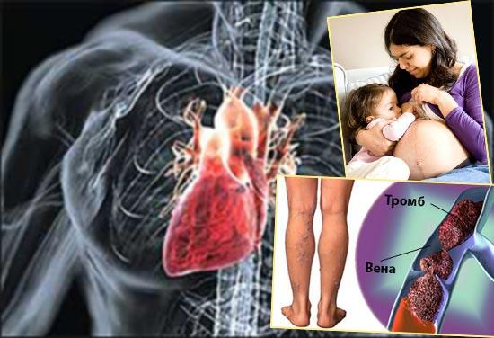Порок сердца, беременность и кормленеи грудью, тромбоз