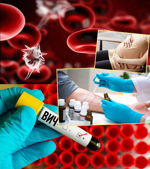 Болезни крови, ВИЧ и беерменность и проверка на аллергичность