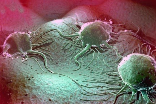 Раковые опухоли из новообразований на коже
