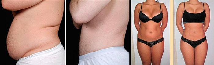 Похудение от криолиполиза до и после
