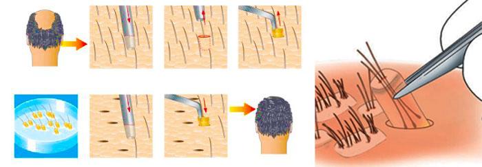 Безшоввный способ пересадки волос и цены