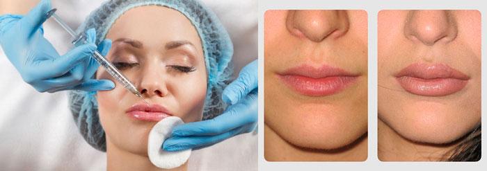Увеличение губ гиалуроновой кислотой и результаты